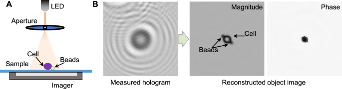 Deep transfer learning-based hologram classification for molecular dia