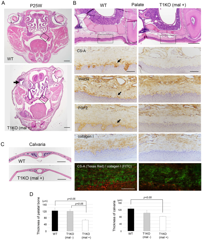 Craniofacial Abnormality With Skeletal Dysplasia In Mice Lacking Chondroitin Sulfate N Acetylgalactosaminyltransferase 1 Scientific Reports A form of articulation in which the bones are rigidly fused by cartilage. craniofacial abnormality with skeletal