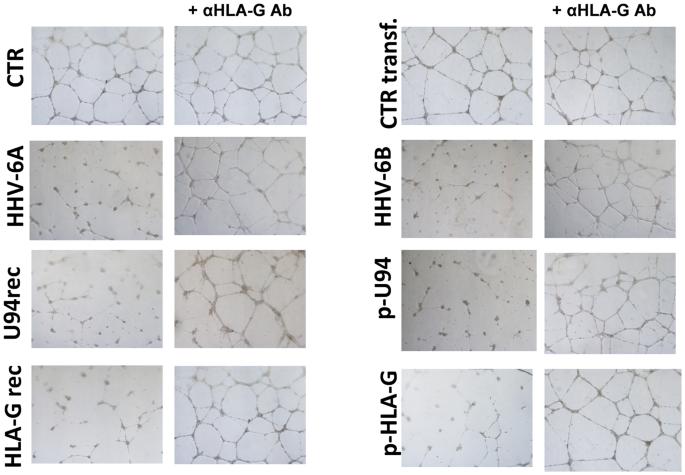 Human Herpesvirus 6A and 6B inhibit in vitro angiogenesis by