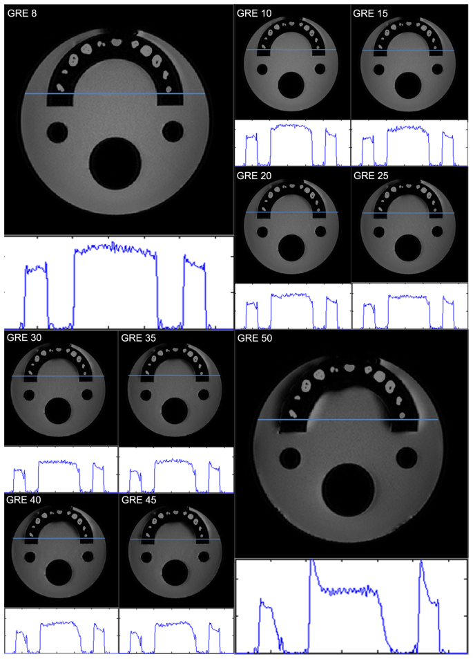 Metal artifacts with dental implants: Evaluation using a dedicated