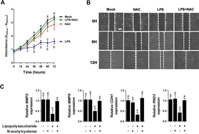 N-acetylcysteine modulates lipopolysaccharide-induced