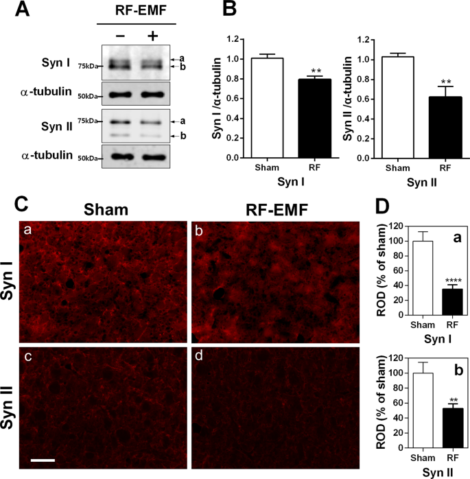 Decreased dopamine in striatum and difficult locomotor recovery from