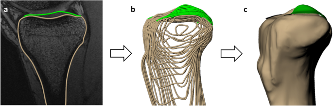 A New Stress Test for Knee Joint Cartilage | Scientific Reports