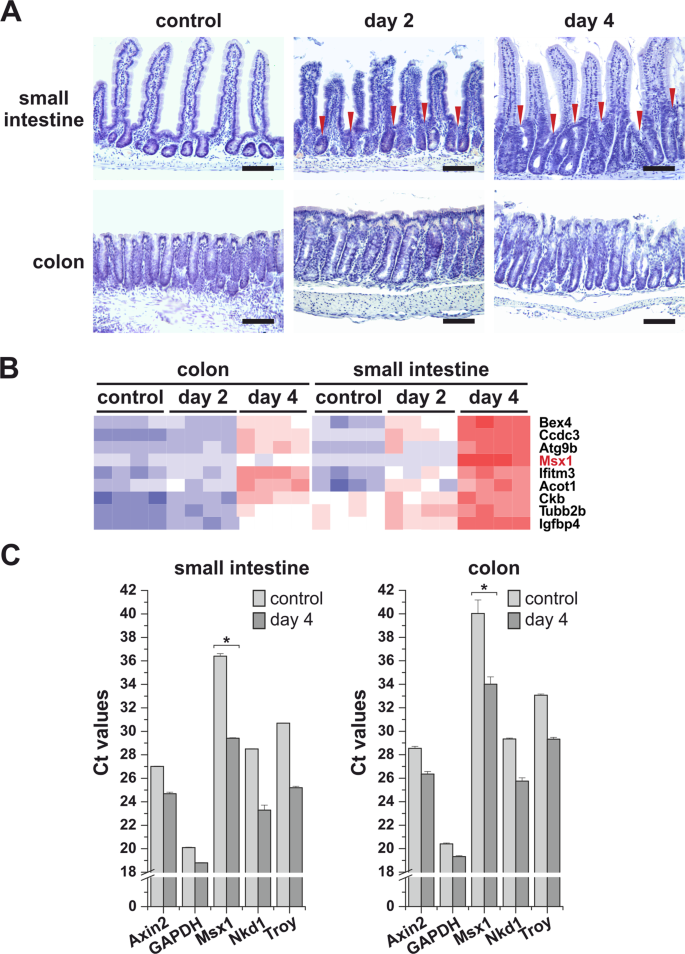 Msx1 loss suppresses formation of the ectopic crypts