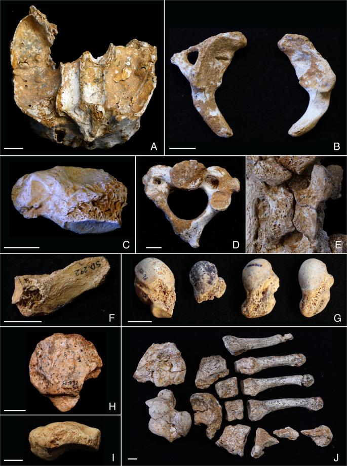 Skeletal Anomalies in The Neandertal Family of El Sidrón