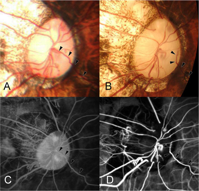 Cilioretinal Arteries and Cilioretinal Veins in Eyes with