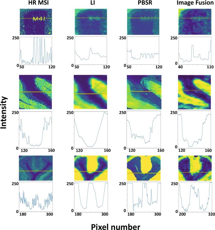 A patch-based super resolution algorithm for improving image