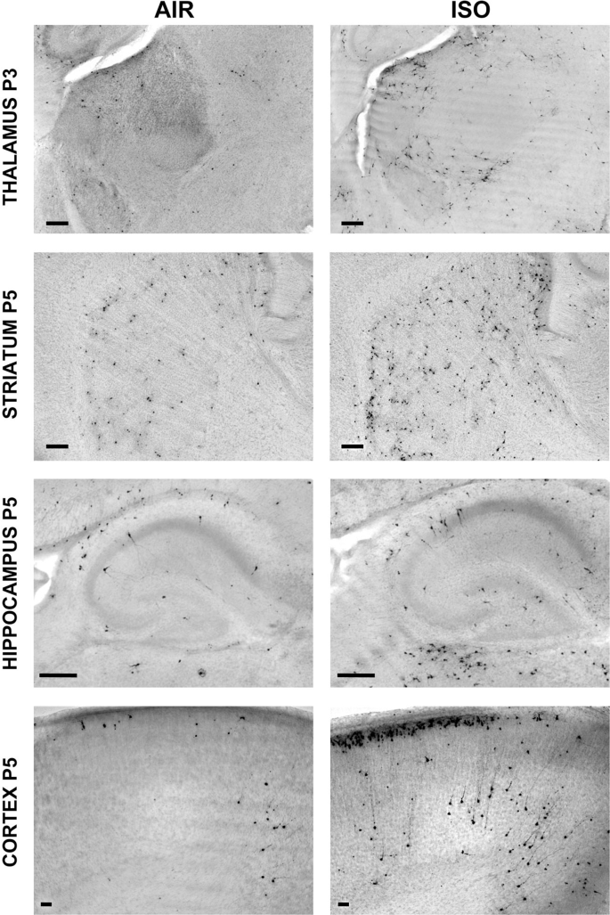 Repeated neonatal isoflurane exposures in the mouse induce