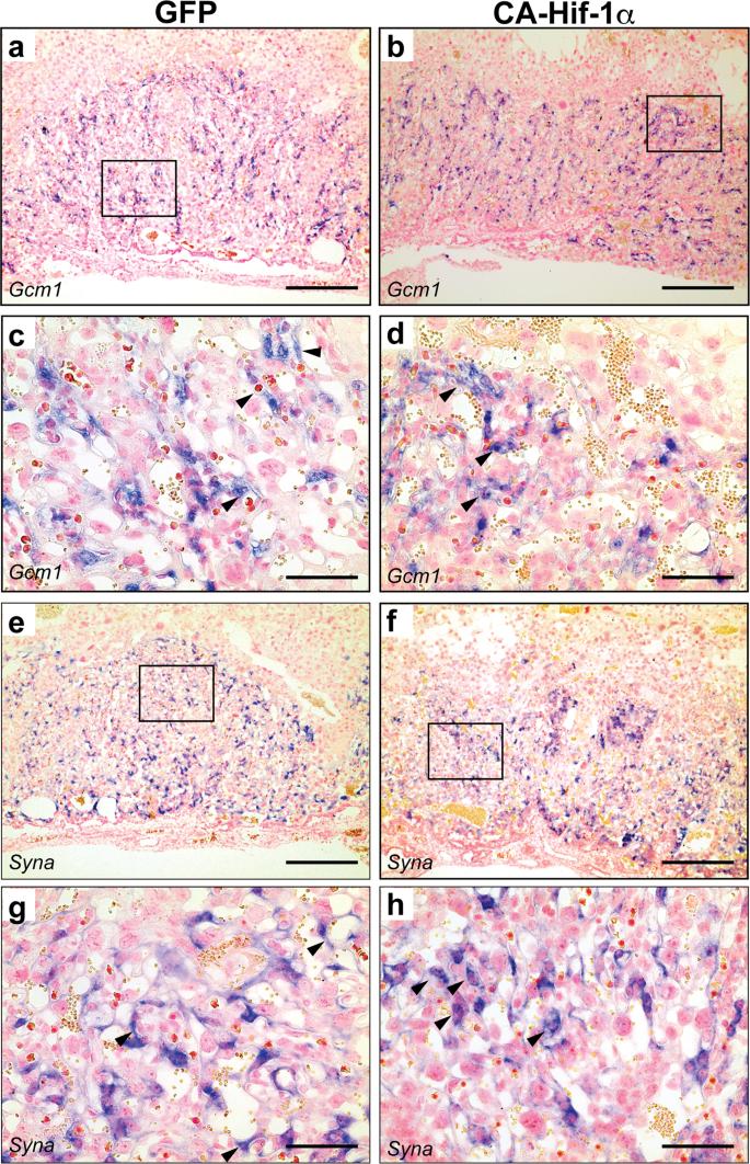 Trophoblast-Specific Expression of Hif-1α Results in Preeclampsia