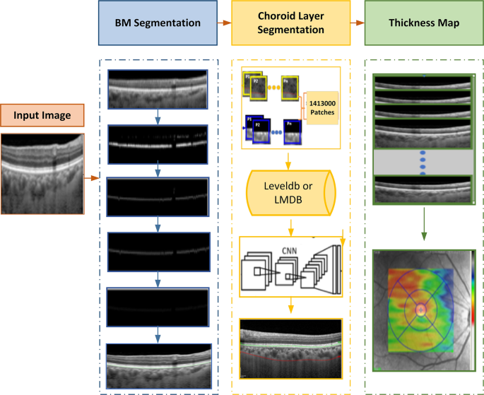 Automatic Choroid Layer Segmentation from Optical Coherence