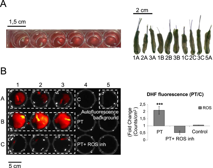 Intrinsic activation of cell growth and differentiation in ...
