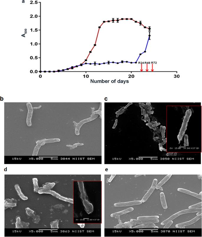 Comparative label-free lipidomic analysis of Mycobacterium
