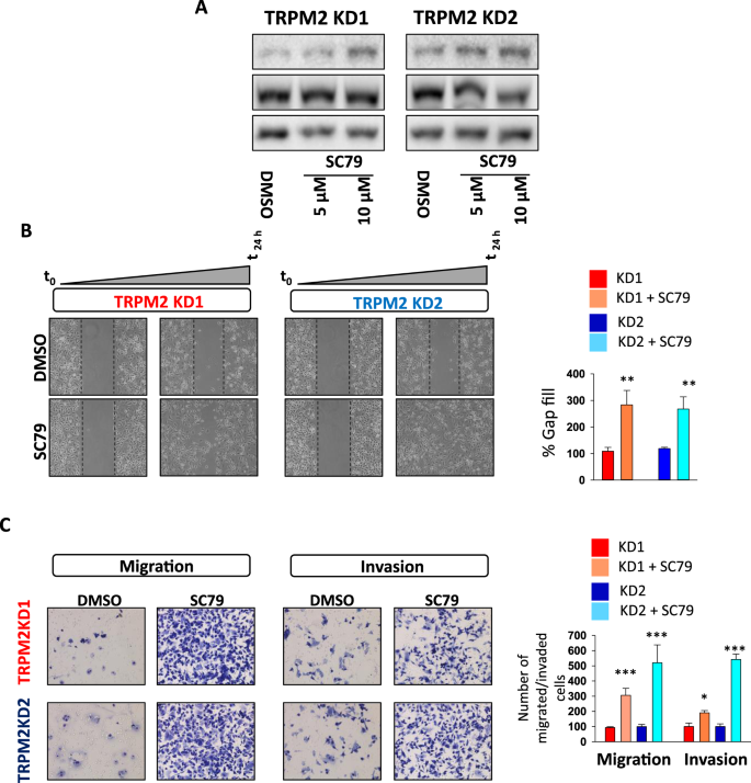 TRPM2 ion channel promotes gastric cancer migration, invasion and