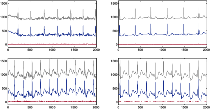 Effective high compression of ECG signals at low level