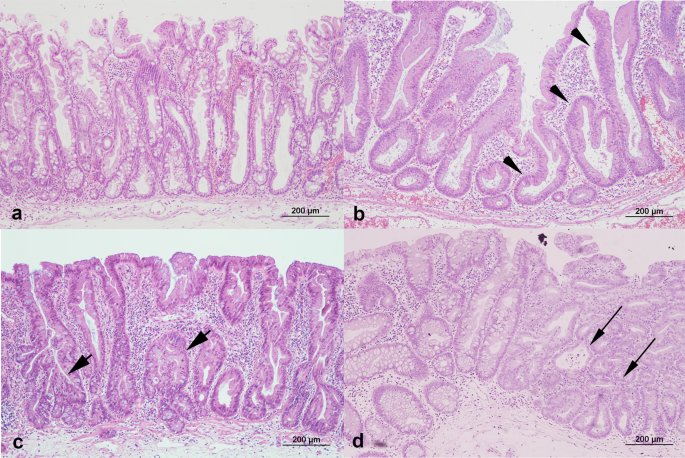 Clinical And Endoscopic Characteristics Of Sessile Serrated Adenomas Polyps With Dysplasia Adenocarcinoma In A Korean Population A Korean Association For The Study Of Intestinal Diseases Kasid Multicenter Study Scientific Reports