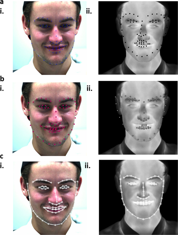 Detecting changes in facial temperature induced by a sudden auditory