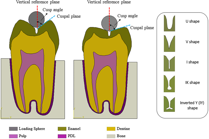 Modelling of stress distribution and fracture in dental