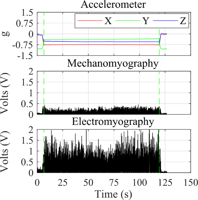 Segmenting Mechanomyography Measures of Muscle Activity Phases Using