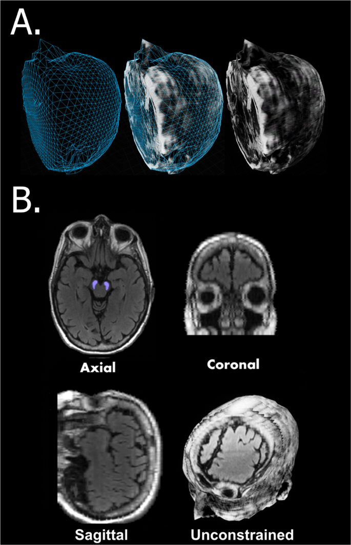 eBrain: a Three Dimensional Simulation Tool to Study Drug Delivery