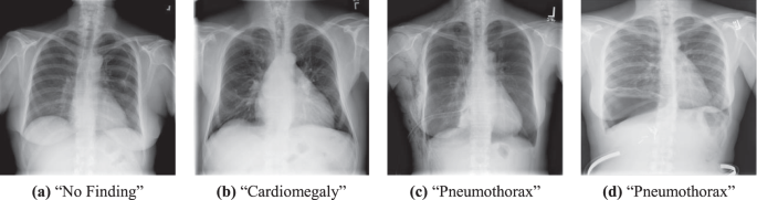 Comparison of Deep Learning Approaches for Multi-Label Chest X-Ray Cla