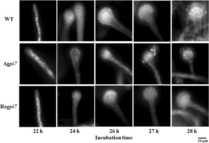 Aspergillus fumigatus phosphoethanolamine transferase gene