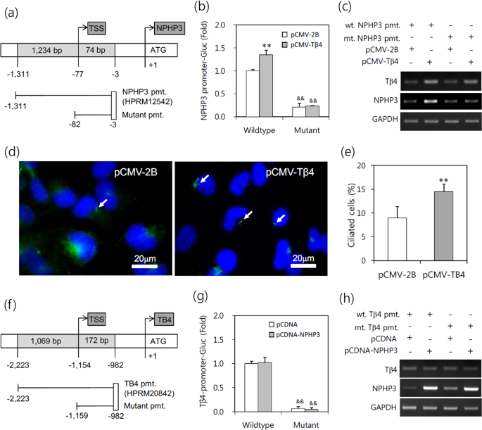 Thymosin β-4 is a novel regulator for primary cilium