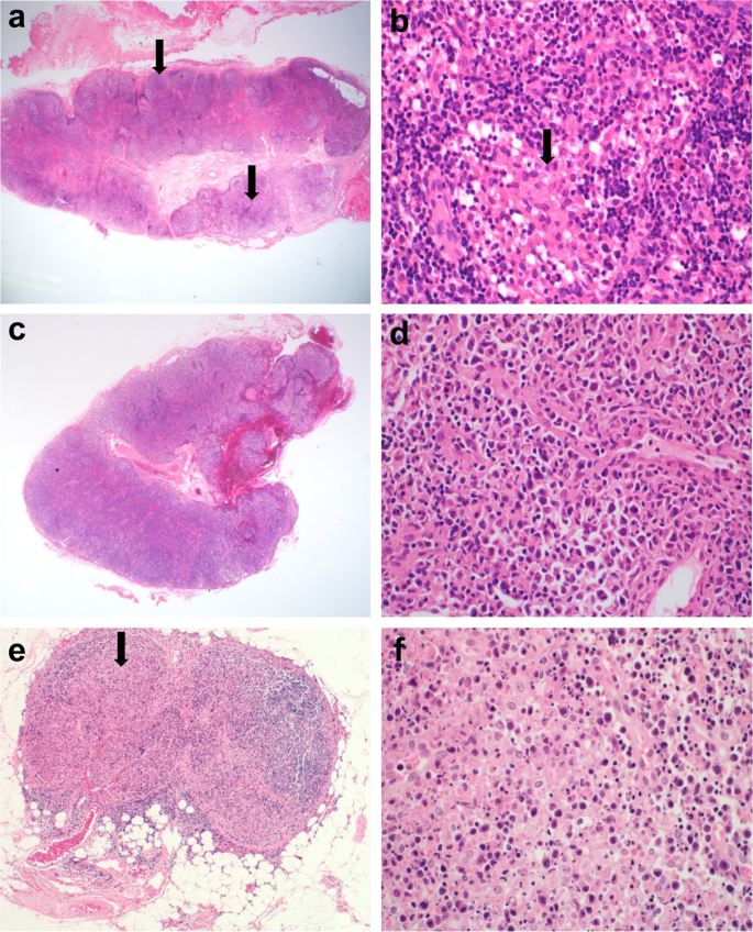 Histopathology and expression of the chemokines CXCL10