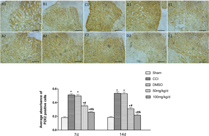 Effects of 1,8-cineole on neuropathic pain mediated by P2X2