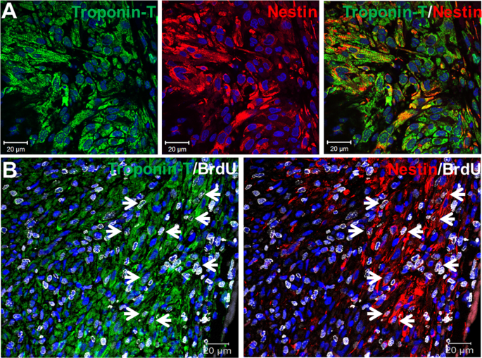 fb429f73eb7a Nestin/cardiac troponin-T(+)-ventricular cardiomyocytes were detected  exclusively adjacent to the fibrin clot region and a subpopulation re-entered  the cell ...