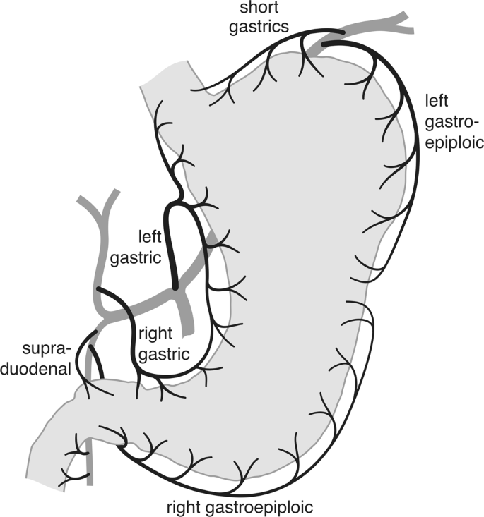 A Differential Approach to Form and Site of Peptic Ulcer