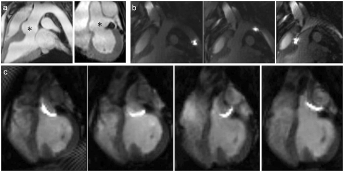 real time magnetic resonance imaging