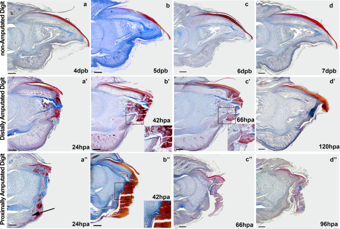 Bone growth as the main determinant of mouse digit tip regeneration
