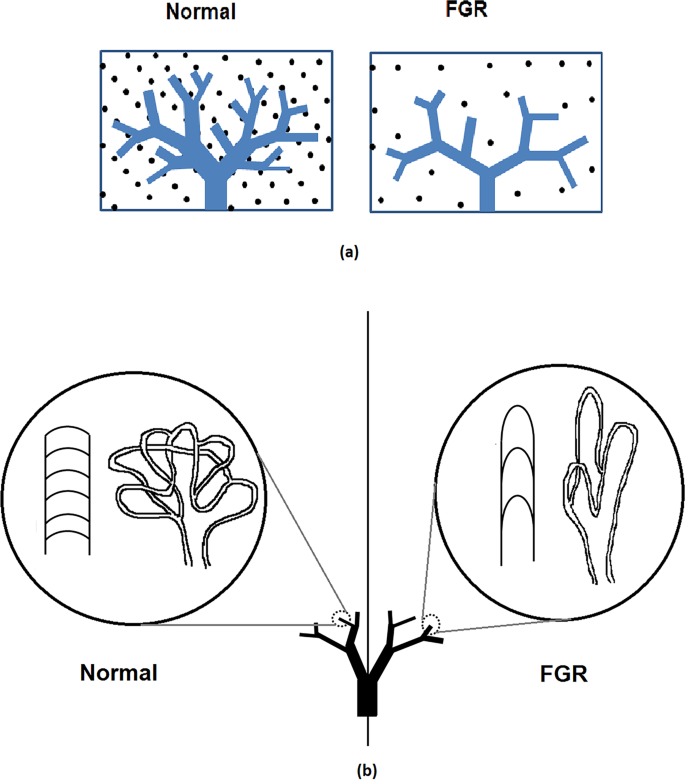 Differences in placental capillary shear stress in fetal growth restri