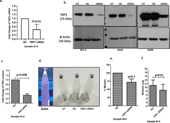 Micro RNAs upregulated in Vitiligo skin play an important