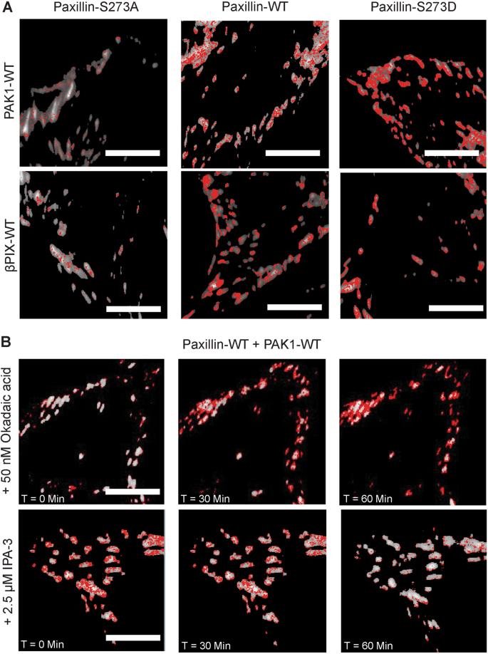 Paxillin S273 Phosphorylation Regulates Adhesion Dynamics