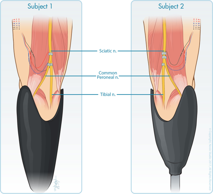 Visual inputs and postural manipulations affect the location of somato