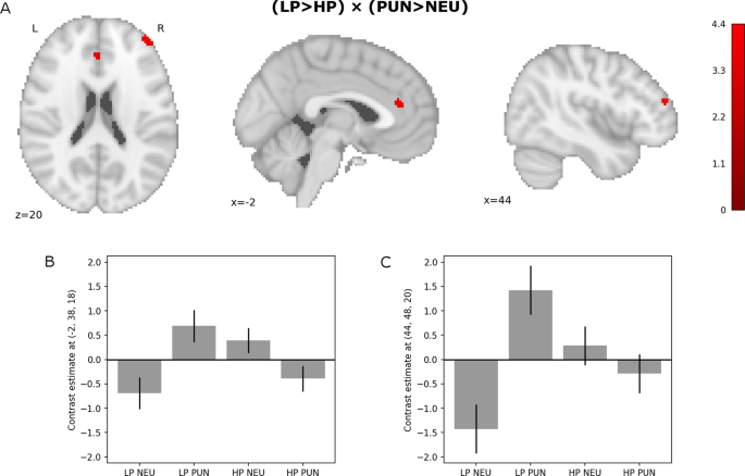 Attenuated brain activity during error processing and punishment
