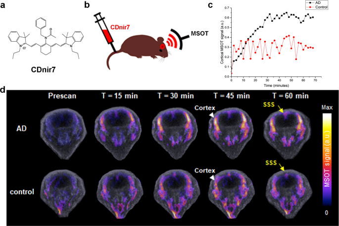 Visualizing Alzheimer's Disease Mouse Brain with Multispectral O