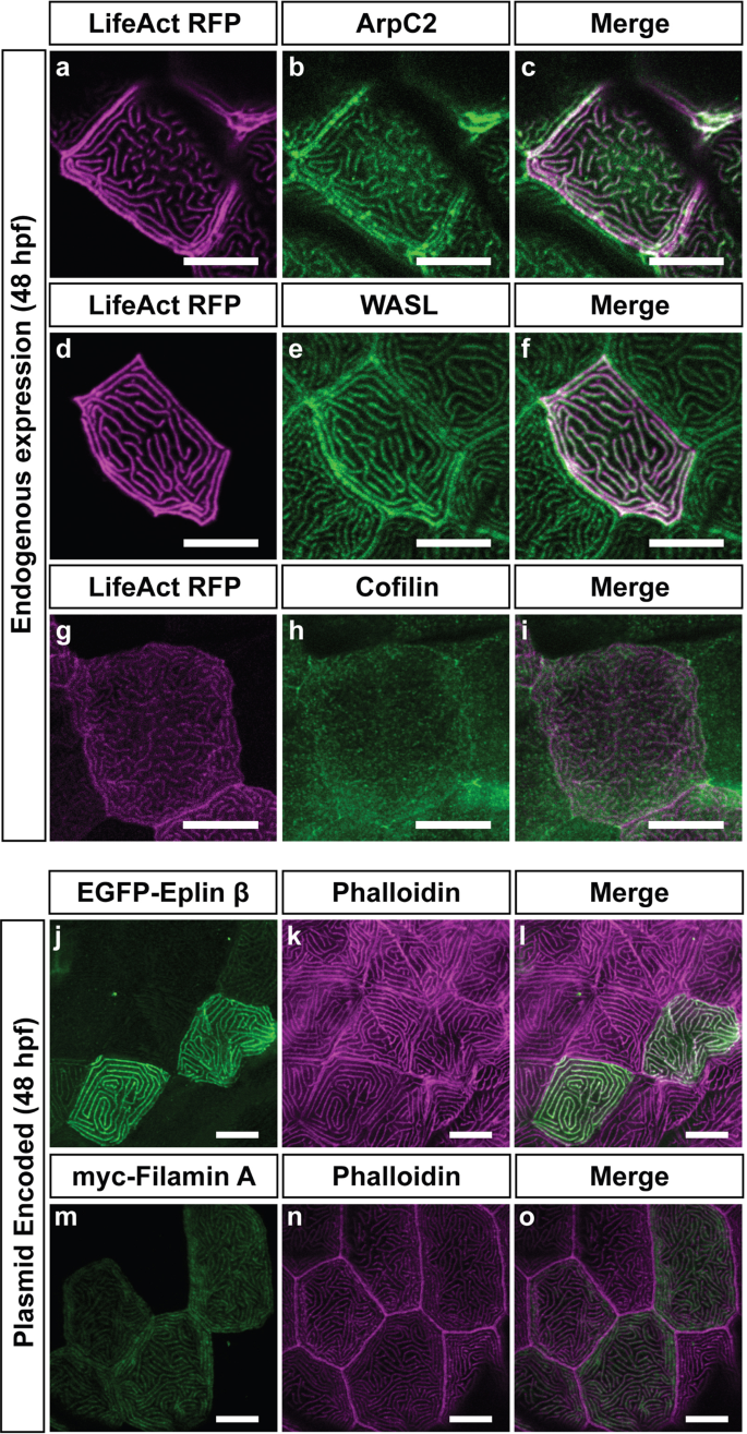 Microridges are apical epithelial projections formed of F