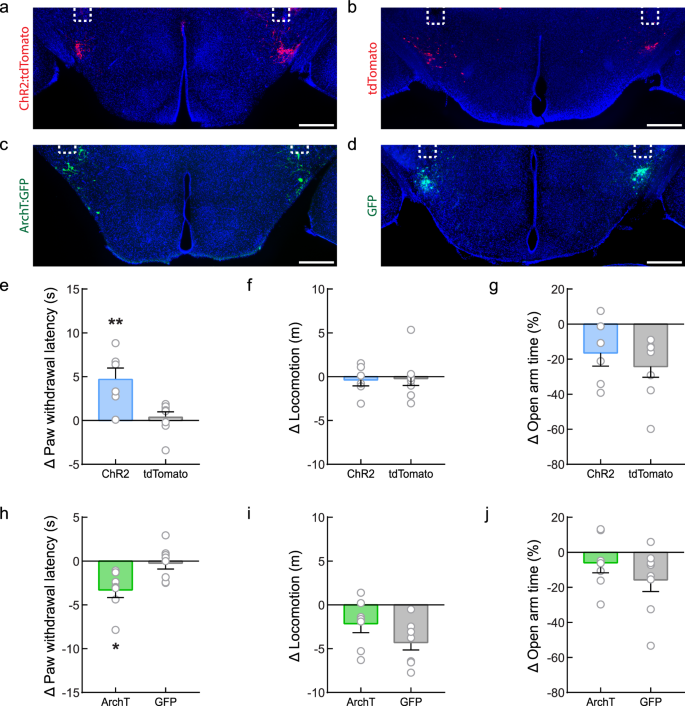 Lateral hypothalamic fast-spiking parvalbumin neurons modulate nocicep