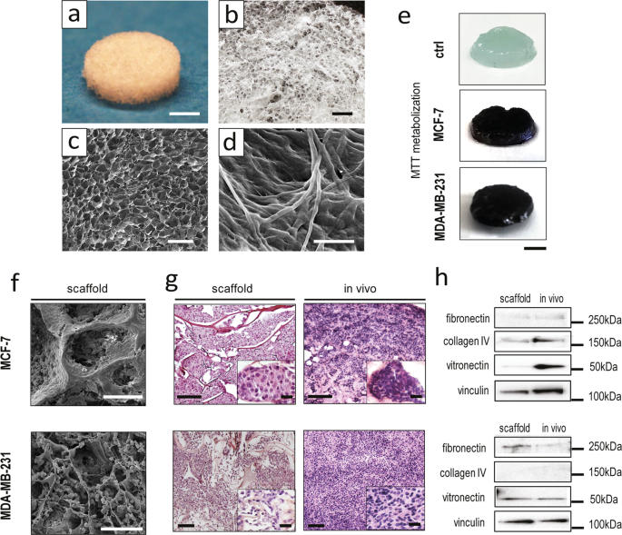 A biomimetic 3D model of hypoxia-driven cancer progression