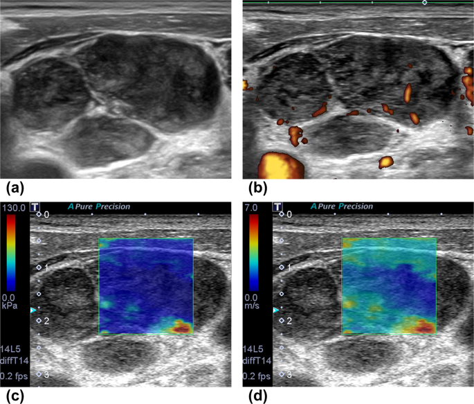 Differentiating Cervical Metastatic Lymphadenopathy And Lymphoma By Shear Wave Elastography Scientific Reports