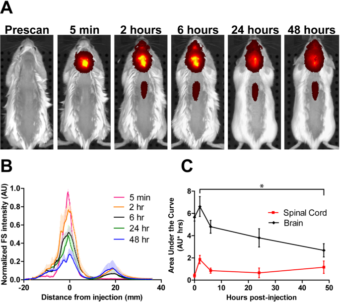 Fate of nanoparticles in the central nervous system after intrathecal