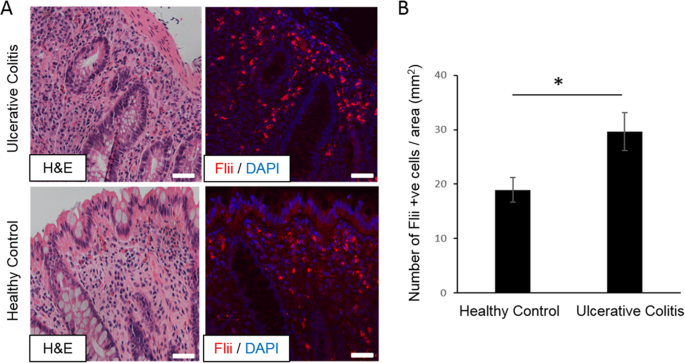 Flightless I exacerbation of inflammatory responses contributes to inc
