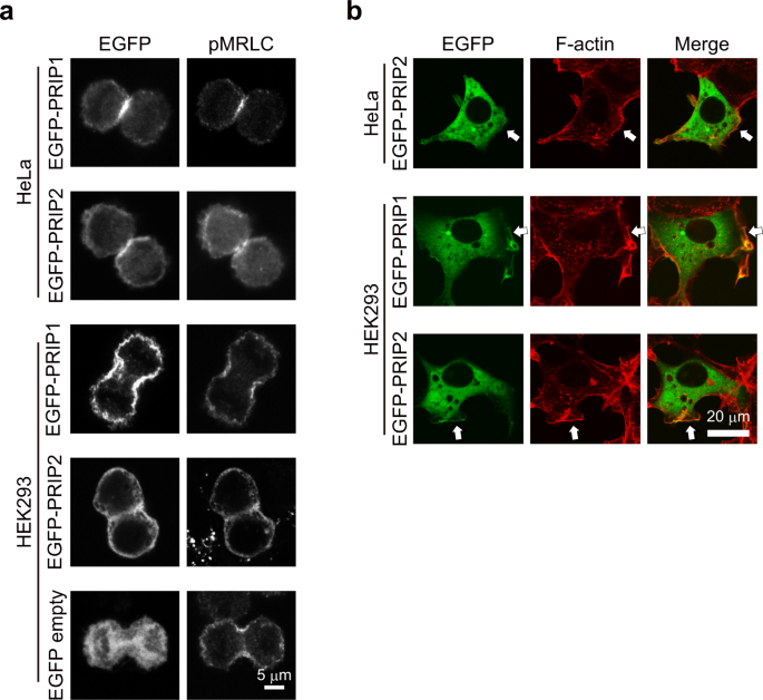 Phospholipase C-related catalytically inactive protein regulates cytok