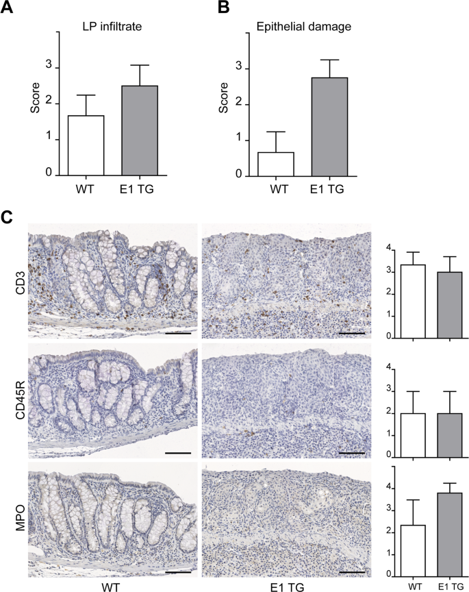 Multiplex Staining Depicts The Immune Infiltrate In Colitis Induced Colon Cancer Model Scientific Reports