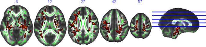 White matter microstructure mediates the association between physical