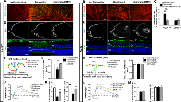 Immunometabolic modulation of retinal inflammation by CD36 ligand