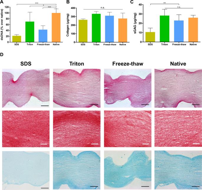 The impact of decellularization methods on extracellular matrix derive