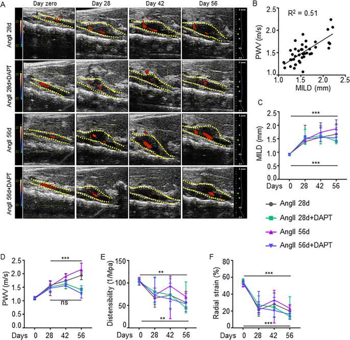 Pharmacological inhibition of Notch signaling regresses pre-establishe